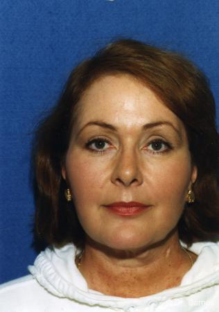 Virginia Beach Laser Skin Resurfacing - Face -  After Image 2