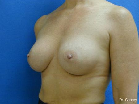 Virginia Beach Breast Augmentation 1081 -  After Image 2