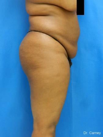 Brazilian Butt Lift: Patient 4 - Before and After Image 5