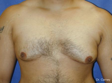 Virginia Beach Gynecomastia 1255 - Before Image