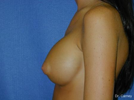 Virginia Beach Breast Augmentation 1082 -  After Image 1