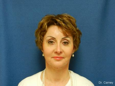 Virginia Beach Facelift 1132 - After Image