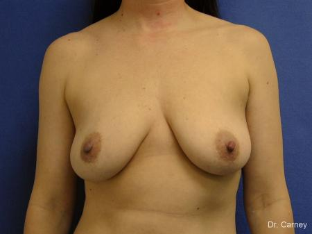 Virginia Beach Combo Procedure Breast 1184 - Before Image