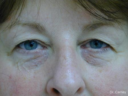 Virginia Beach Eyelid Lift 1129 - Before Image
