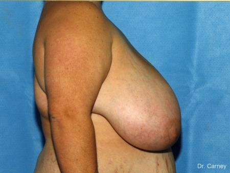 Virginia Beach Breast Reduction 1232 - Before and After Image 2