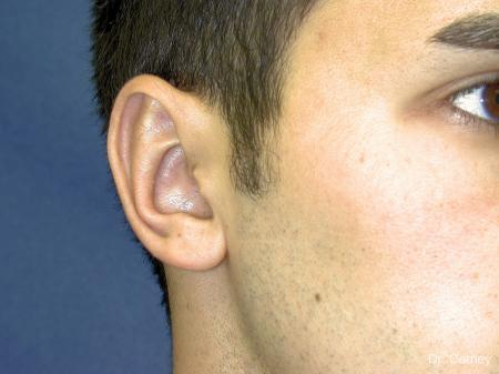Virginia Beach Otoplasty Earlobe Repair 1222 -  After Image 3