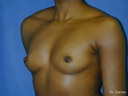 Virginia Beach Breast Augmentation 1085 - Before Image 2