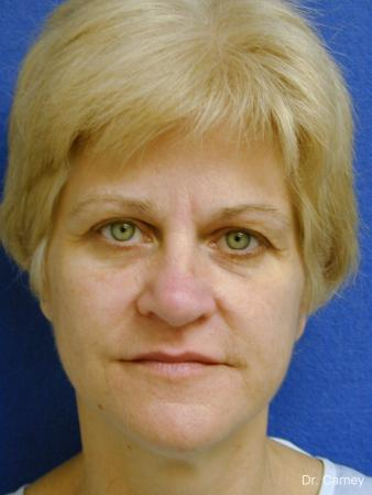 Virginia Beach Facelift 1346 - Before Image