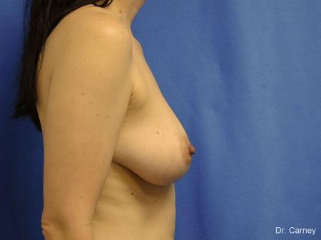 Virginia Beach Combo Procedure Breast 1184 - Before and After Image 3