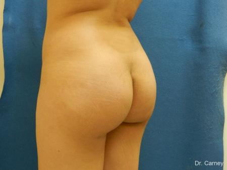 Virginia Beach Brazilian Butt Lift 1221 -  After Image 4