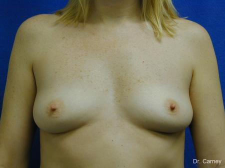 Virginia Beach Breast Augmentation 1084 - Before and After Image 3