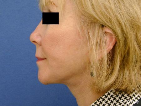 Virginia Beach Laser Skin Resurfacing Face 1263 -  After Image 4