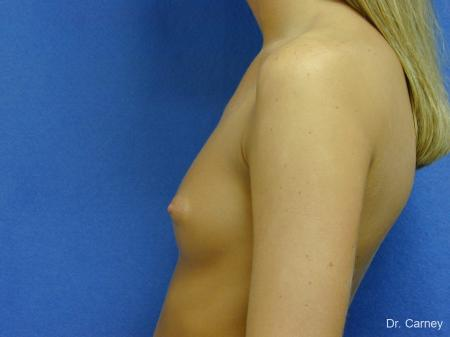 Virginia Beach Breast Augmentation 1082 - Before Image 1