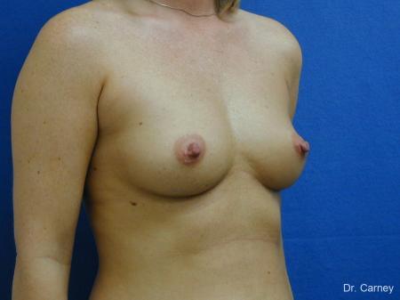 Virginia Beach Breast Augmentation 1192 - Before Image 2