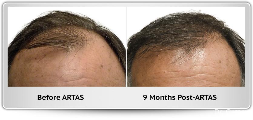 Hair Transplantation: Patient 12 - Before and After Image 1