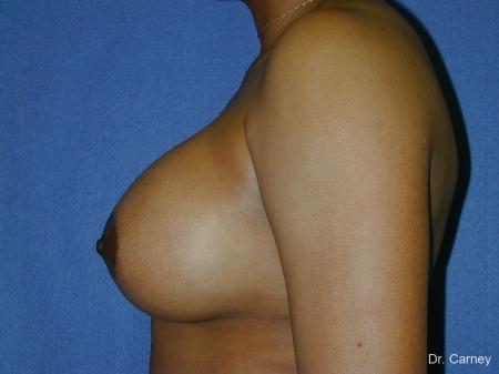Virginia Beach Breast Augmentation 1091 -  After Image 2