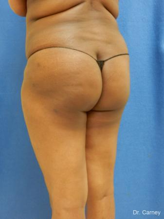 Brazilian Butt Lift: Patient 5 - After Image 2