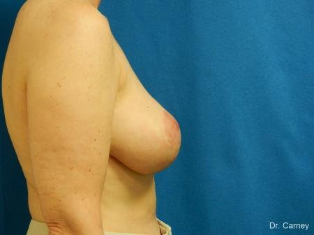Virginia Beach Breast Lift 1185 -  After Image 3