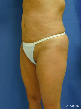Virginia Beach Liposuction 1213 - After Image
