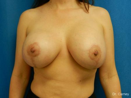 Virginia Beach Combo Procedure Breast 1184 - After Image