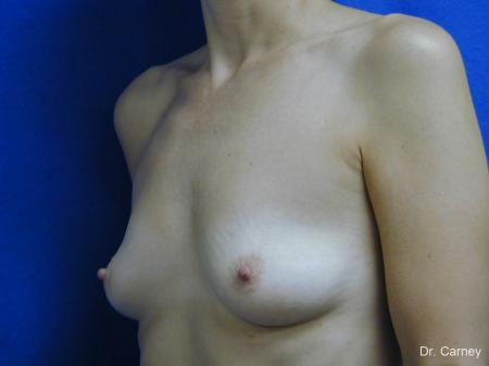 Virginia Beach Breast Augmentation 1088 - Before Image 2
