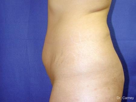Tummy Tuck: Patient 1 - Before Image 3