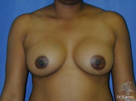 Virginia Beach Breast Augmentation 1091 -  After Image 1