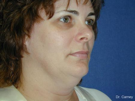 Virginia Beach Facelift 1136 - Before Image