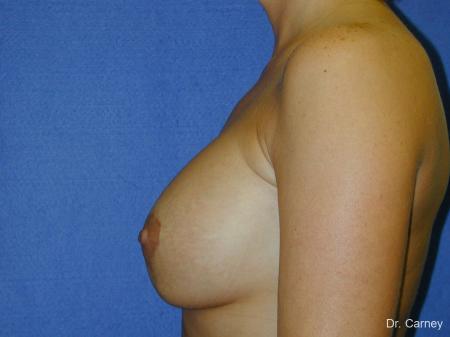 Virginia Beach Combo Procedures Breast 1096 -  After Image 2
