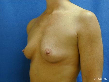 Virginia Beach Breast Augmentation 1214 - Before Image 4