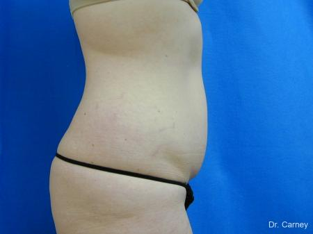 Virginia Beach Tummy Tuck 1251 - Before and After Image 3