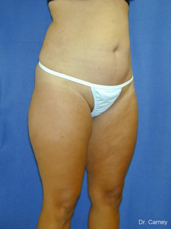 Virginia Beach Liposuction 1284 -  After Image 5