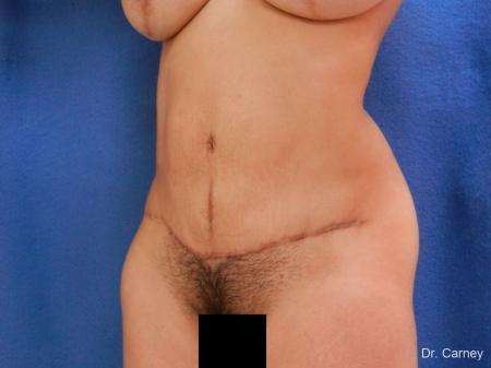 Abdominoplasty: Patient 2 - After Image 4