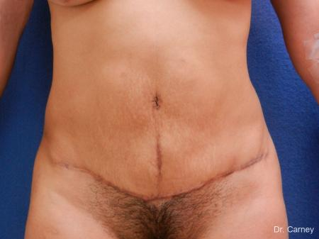 Abdominoplasty: Patient 2 - After Image 3