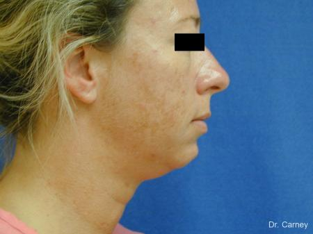 Virginia Beach Neck Lift 1267 - Before Image