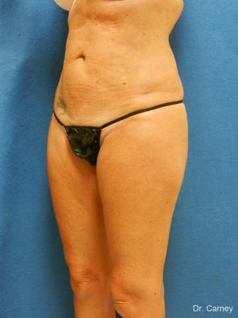 Virginia Beach Liposuction 1279 -  After Image 3