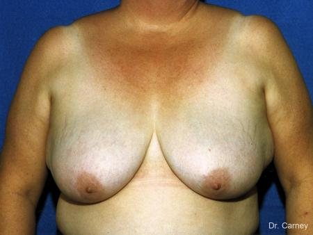 Virginia Beach Breast Reduction 1234 - Before Image
