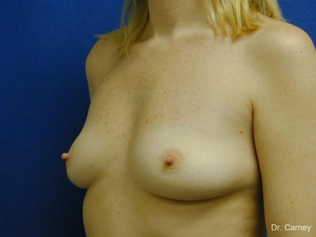 Virginia Beach Breast Augmentation 1084 - Before Image 2