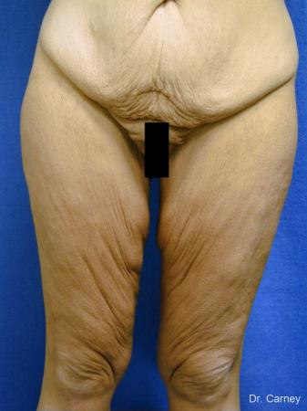 Virginia Beach Thigh Lift 1252 - Before Image