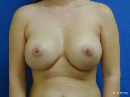Virginia Beach Breast Augmentation 1192 -  After Image 1