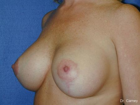 Virginia Beach Combo Procedures Breast 1093 - After Image