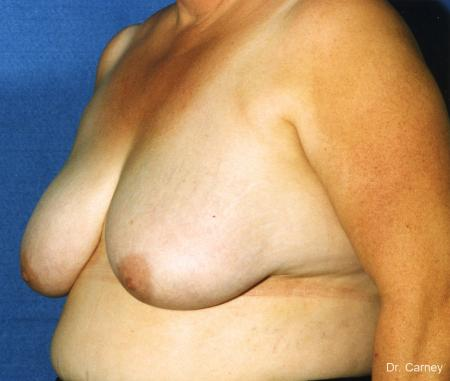 Virginia Beach Breast Lift 1186 - Before and After Image 3
