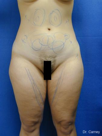 Virginia Beach Liposuction 1276 - Before Image 4