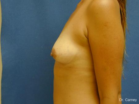 Virginia Beach Breast Augmentation 1860 - Before and After Image 5
