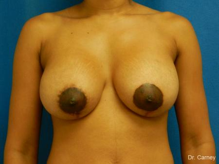 Virginia Beach Combo Procedure Breast 1861 - After Image
