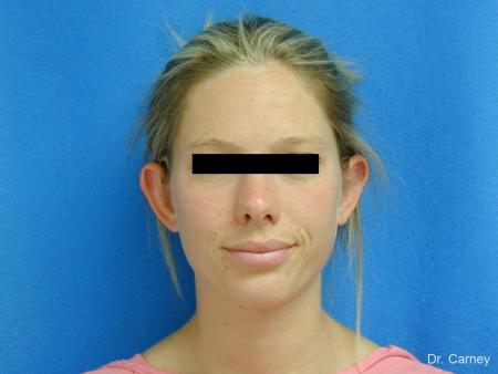 Virginia Beach Otoplasty Earlobe Repair 1223 - Before Image 2
