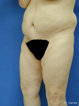 Virginia Beach Tummy Tuck 1250 - After Image