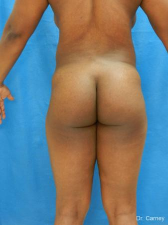 Brazilian Butt Lift: Patient 3 - Before and After Image 5
