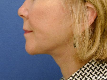 Virginia Beach Neck Lift 1264 -  After Image 1