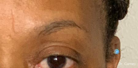 Microblading: Patient 2 - Before Image 1